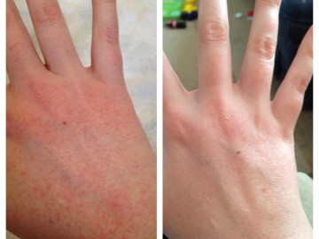 Dealing With Eczema: An Interview With Melissa